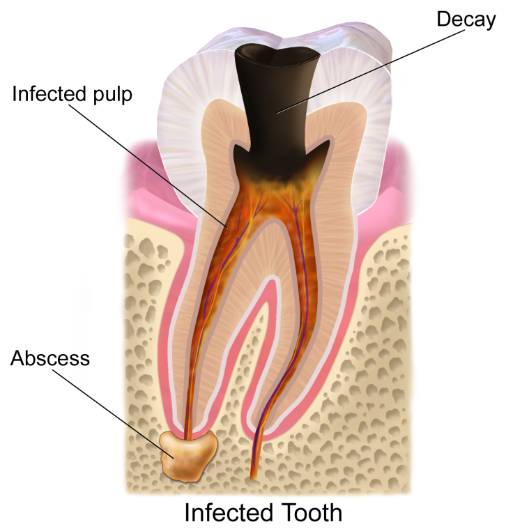 How To Reverse Cavities And Heal Tooth Decay Through Diet