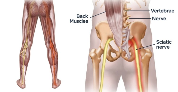 7 Simple Yoga Stretches To Soothe Sciatica Back Pain From