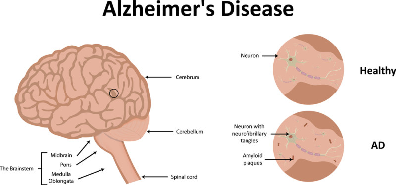 an analysis of the alzheimers disease of the brain in medical research Alzheimer's disease clinical and research update for on diagnostic guidelines for alzheimer's disease alzheimer's and alzheimer's disease medical.